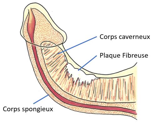 Maladie de Lapeyronie Plaque Penis